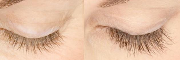 to grow big eyelashes